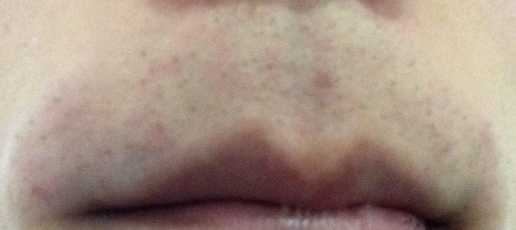光脱毛直後の肌